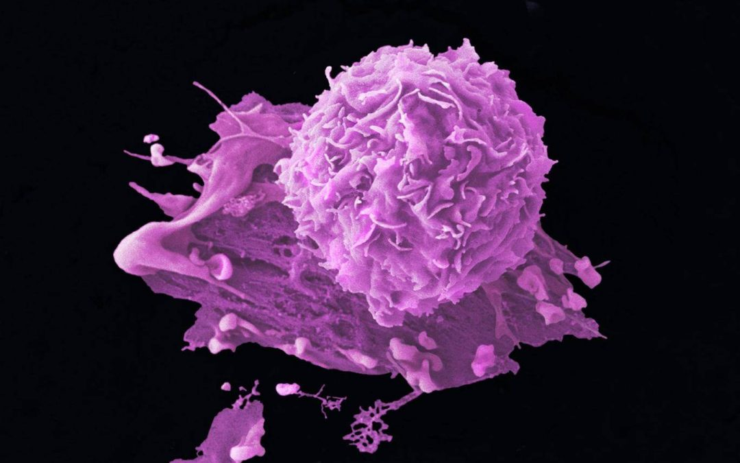 New drug approved for treatment of breast cancer