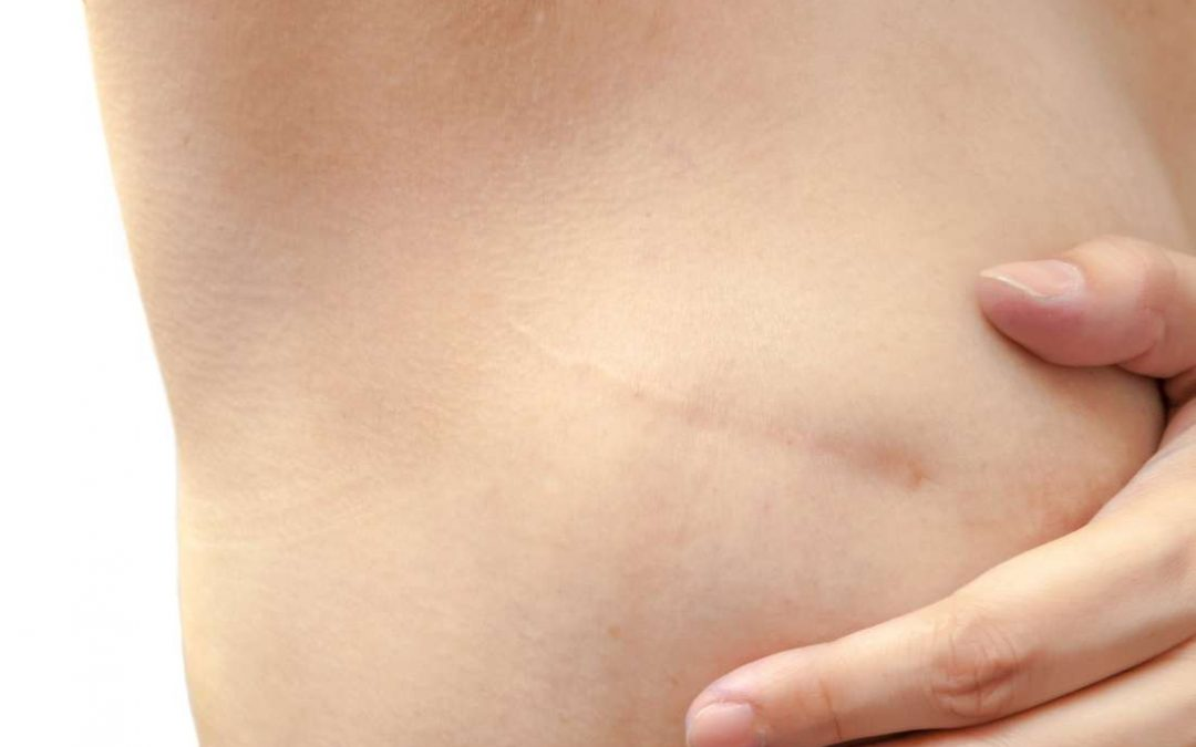 Mastectomy scars: Treatment options and what to expect