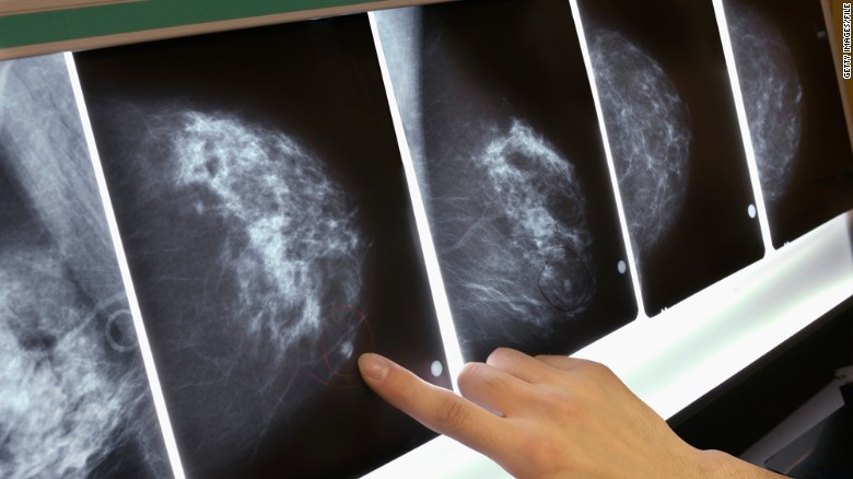 FDA approval of test for breast cancer genes comes with cautions