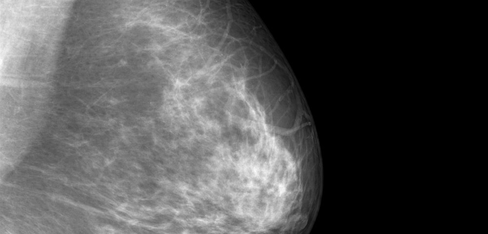 New Breast Cancer Screening Imaging Method Finds Tumors in Seconds