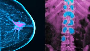 cs-When-Breast-Cancer-Metastases-to-the-Bones-722×406-1