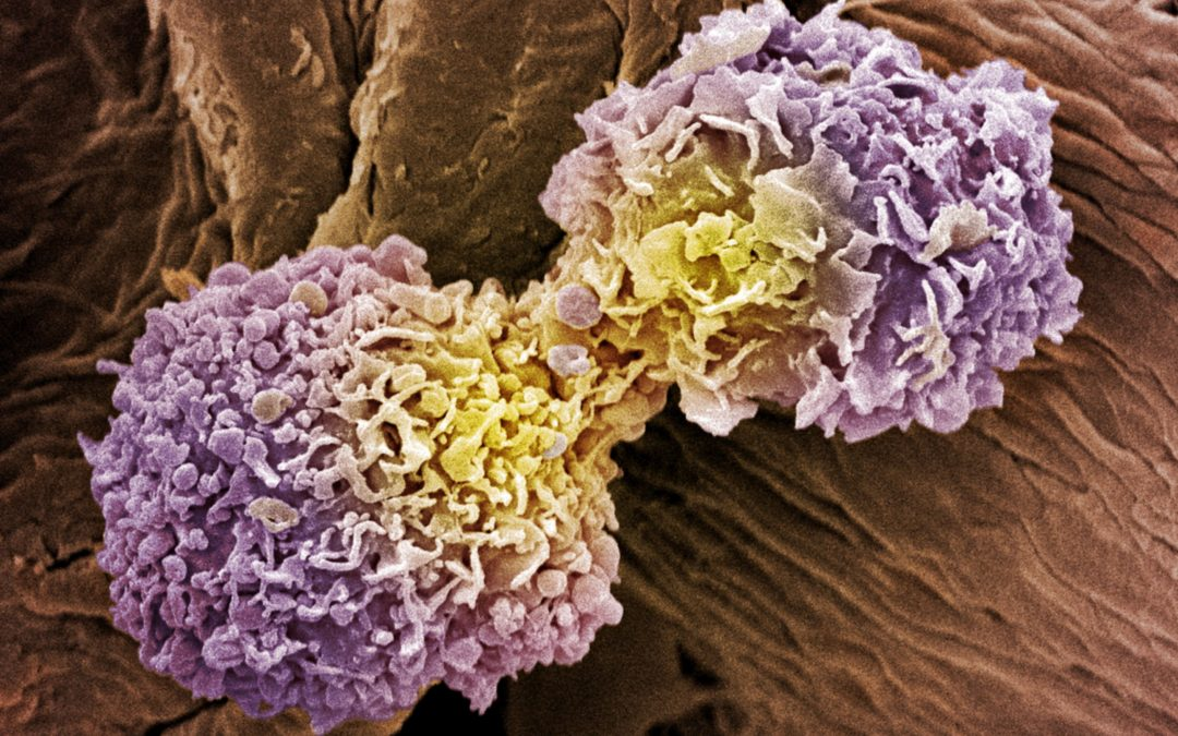 How Breast Cancer Spreads and Recurs