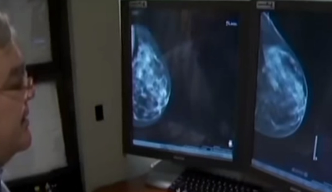 All Women Should Know This Key Fact About Dense Breast Tissue!