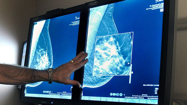 FDA Proposes New Mammography Regulations