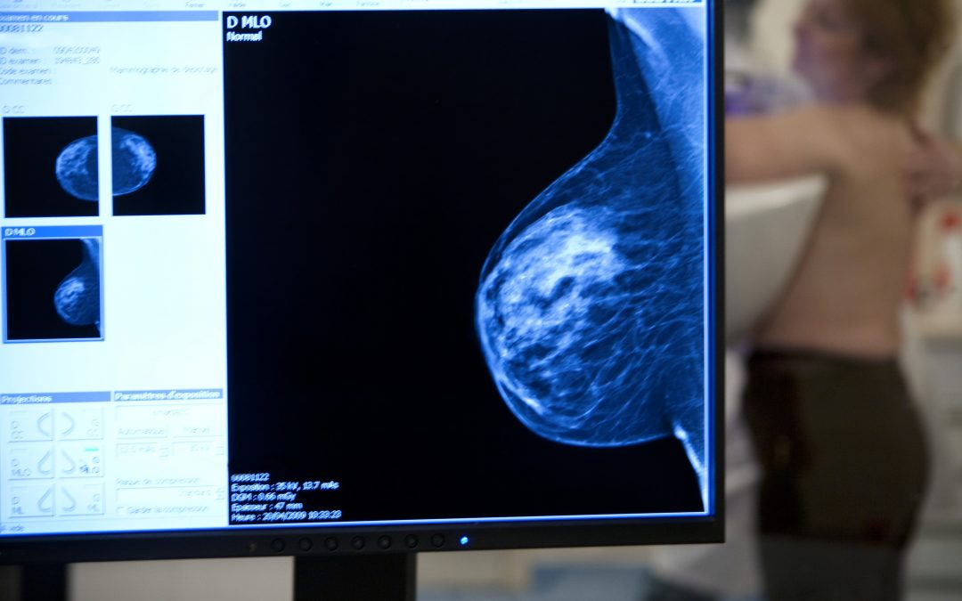 More Women With Breast Cancer May Soon Be Skipping Chemotherapy