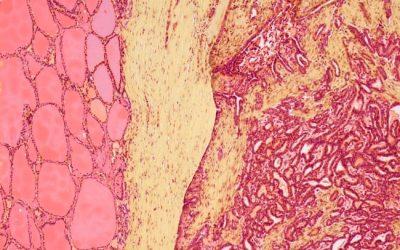 Does Radioactive Iodine Treatment for Hyperthyroidism Confer A Higher Cancer Risk?