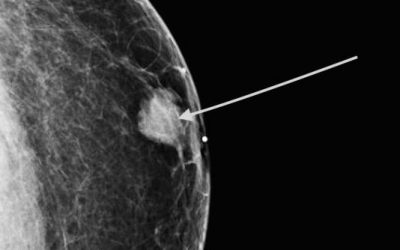 Men with Breast Cancer Have Higher Mortality than Women