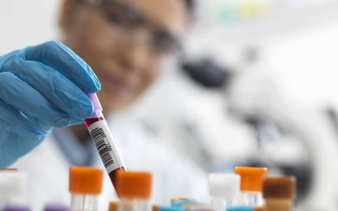 Breast cancer: An innovative blood test could aid early detection