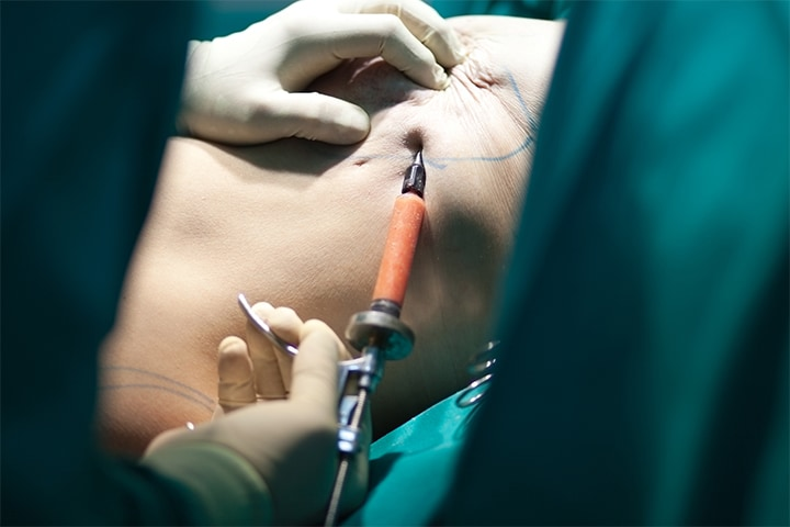 Oncologic Outcomes No Worse With Newer Mastectomy Methods