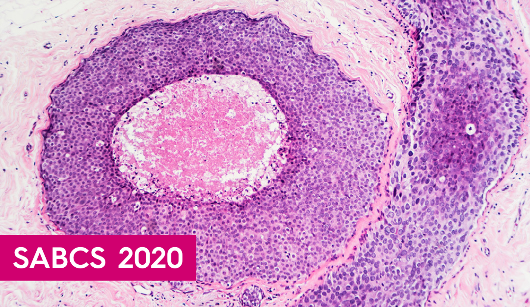 Ductal Carcinoma in Situ (DCIS) Research Updates 2020