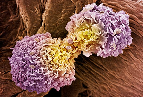 Where Breast Cancer Spreads: Lymph Nodes, Bones, Liver, Lungs, Brain