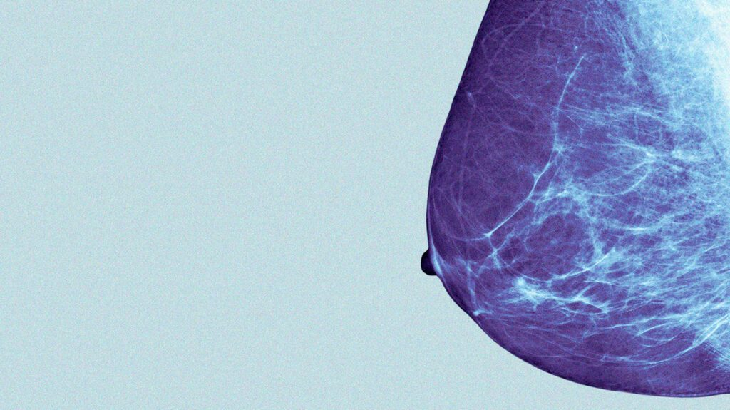 Breast cancer: Androgen therapy shows promise in preliminary study