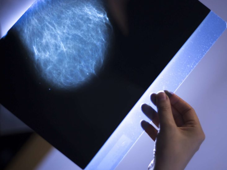 How fast can breast cancer spread in 1 year?