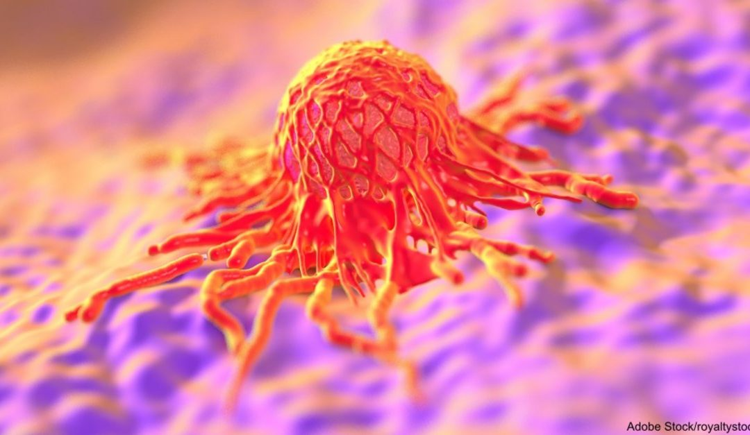 Cancer Is Much Easier to Find Now that Researchers Have Found a Way to Make It GLOW!